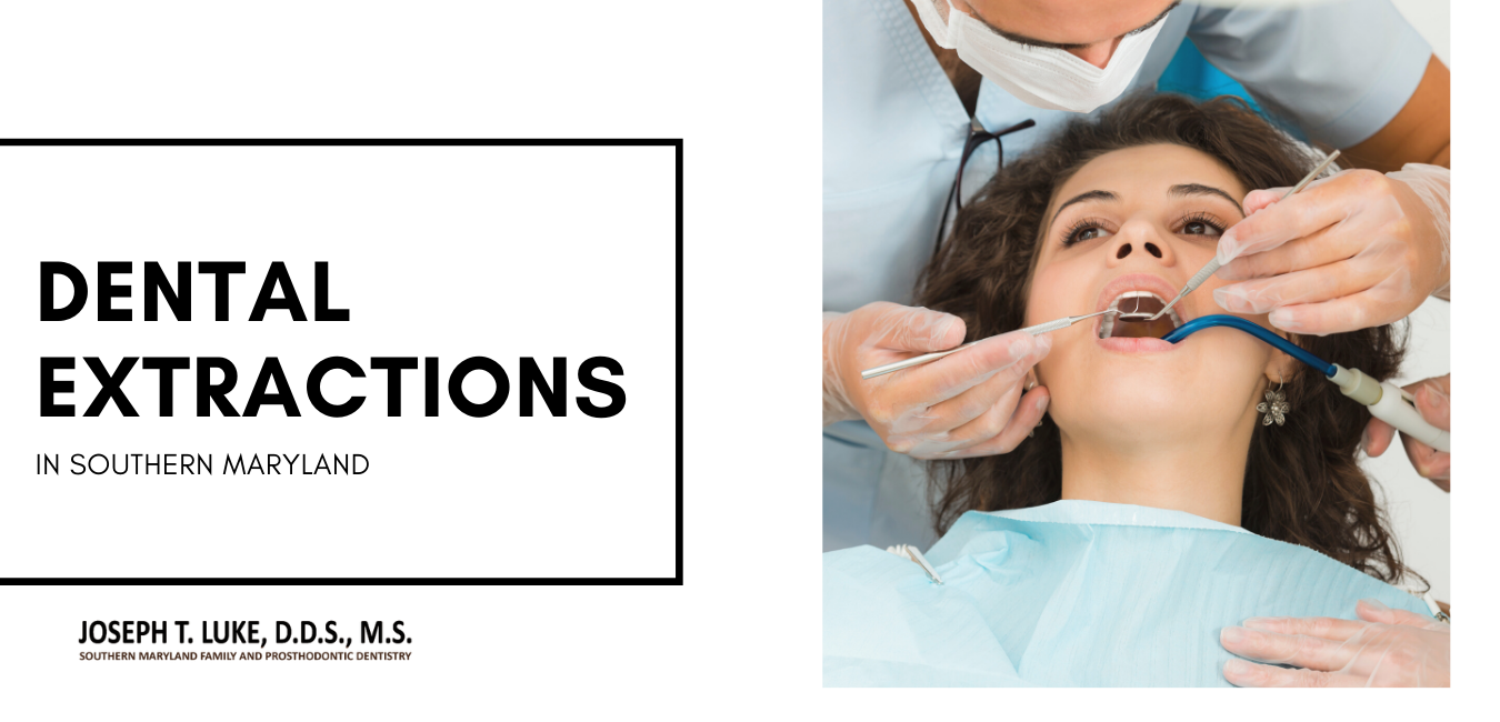Dental Extractions Souther Maryland