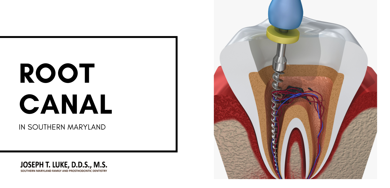 Root Canal Southern Maryland