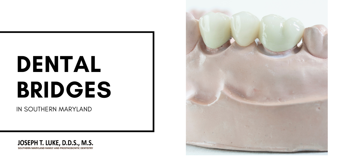Dental Bridges Southern Maryland