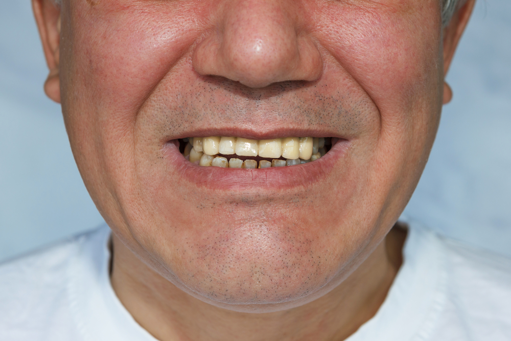 The Truth About Dental Bridges