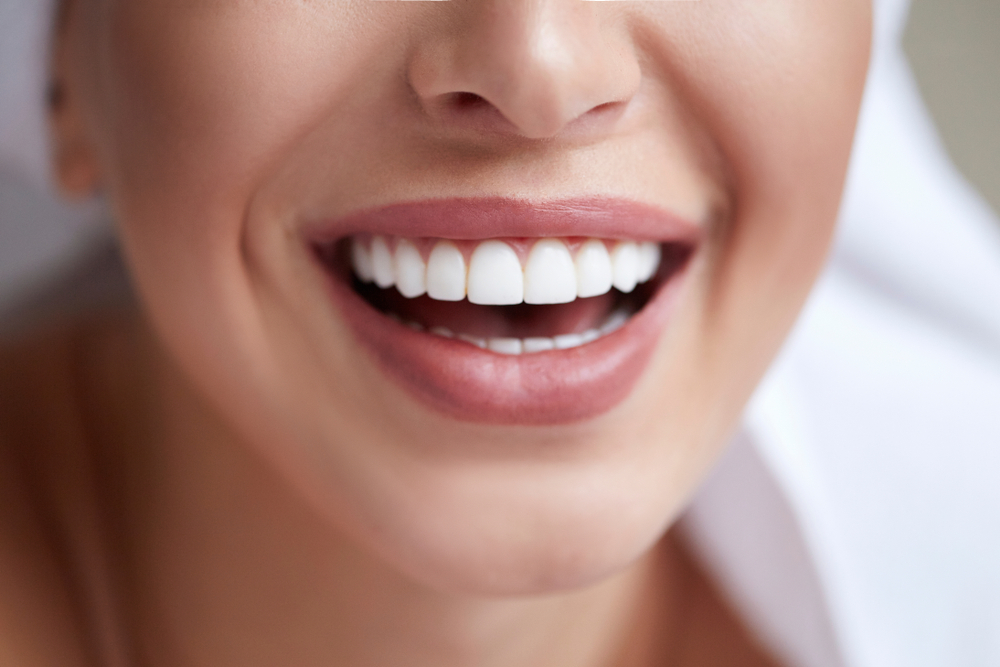 What Is the Veneer Cost in St. Marys?